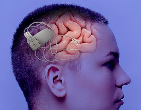 Rns Neuropace