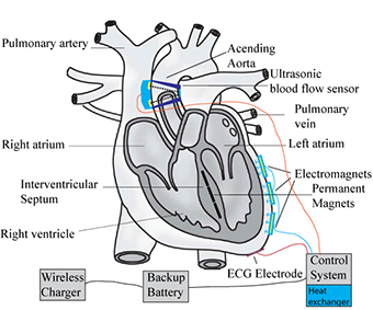 Student-Designed Heart Pump Is Lighter Than the Rest