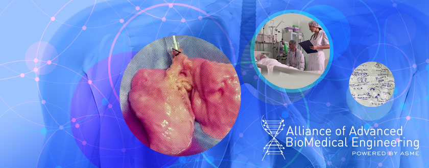 Artificial Lungs Could Offer Real Hope to Future Transplant Patients